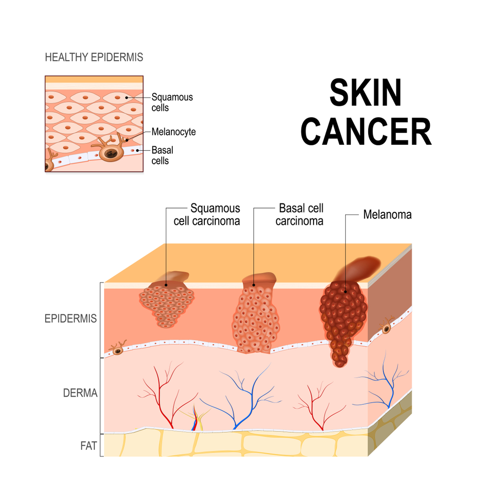 Eggplant Tincture For Skin Cancer Vanessa Marsden Rn